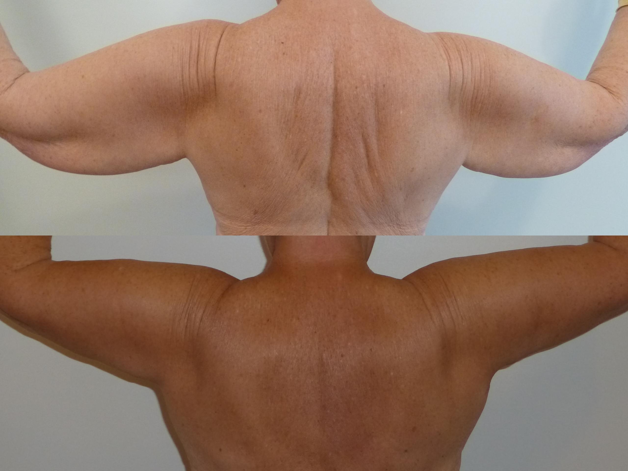 Résultat d'une brachioplastie