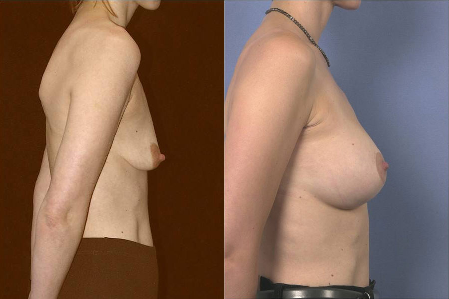 Breast augmentation with lifting