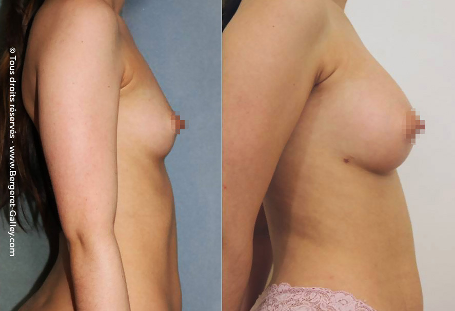 lipofilling breasts, Lipoaspiration and reinjection of fat