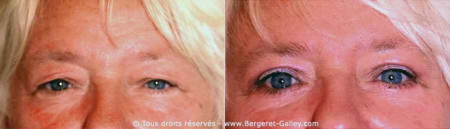 Correction of ptosis in the upper eyelids, eyelid aesthetic surgery