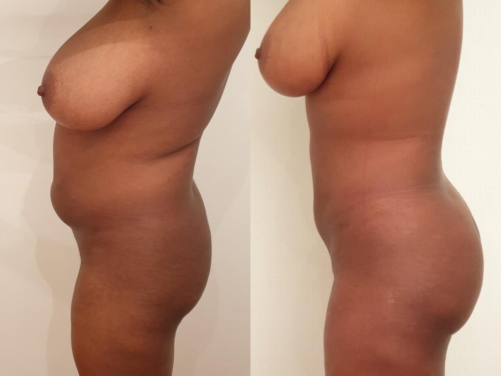 Avant/après un lipofilling