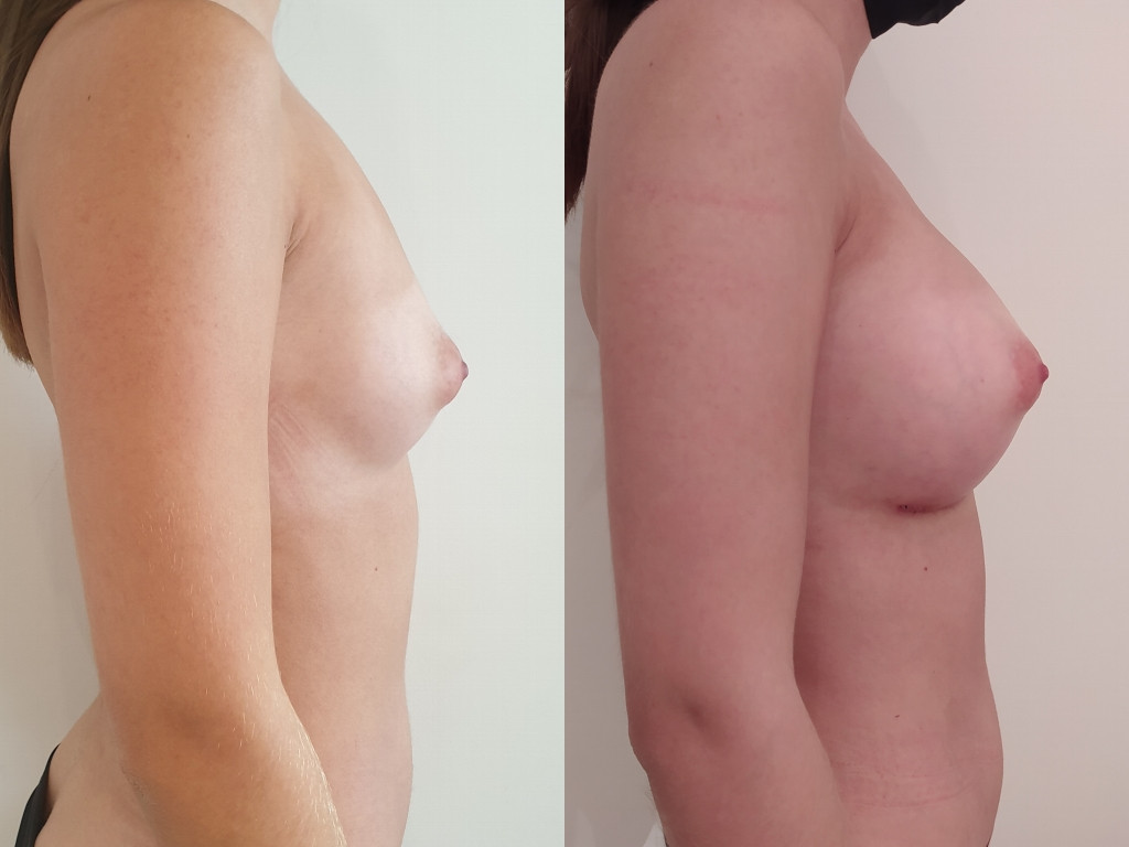 Tuberous breasts before after surgery