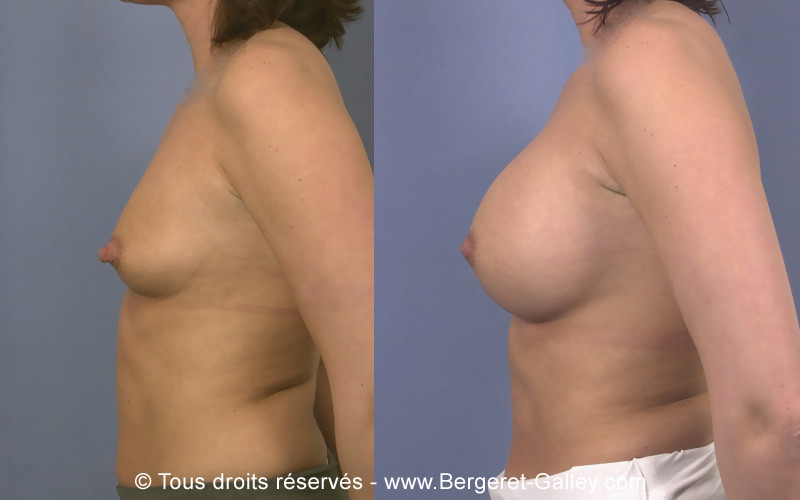 Result of a breast implantation, of 350 mL on each side