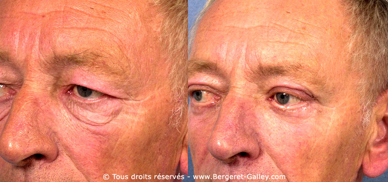 The result of this patient is showing that   aesthetic surgery is also for men