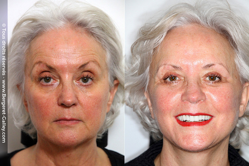 Facial aesthetic surgery including eyebrow correction together with a facelift and lipofilling of the face.