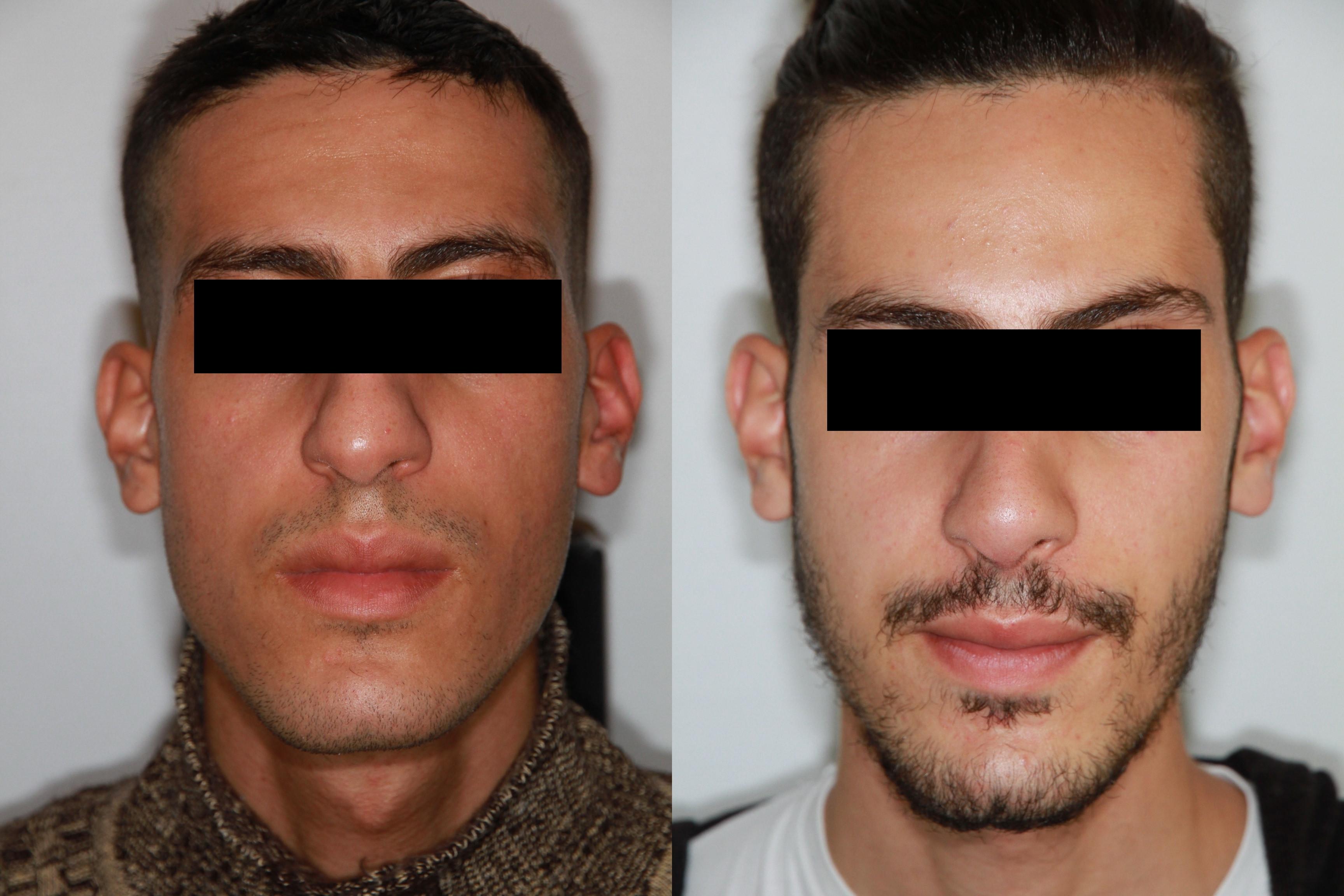 De face avant et après opération Rhinoplastie