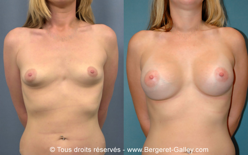 Photo before and after a mammary augmentation with implants of 350 mL