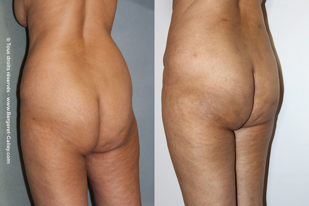 Before/After Lipofilling  Buttocks