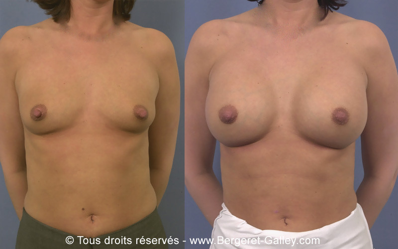 Photos before-and-after and breast enlargement with implants