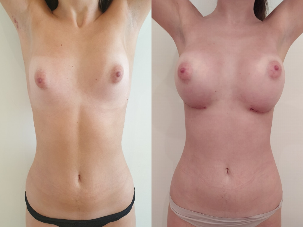 Tuberous breasts before/after surgery