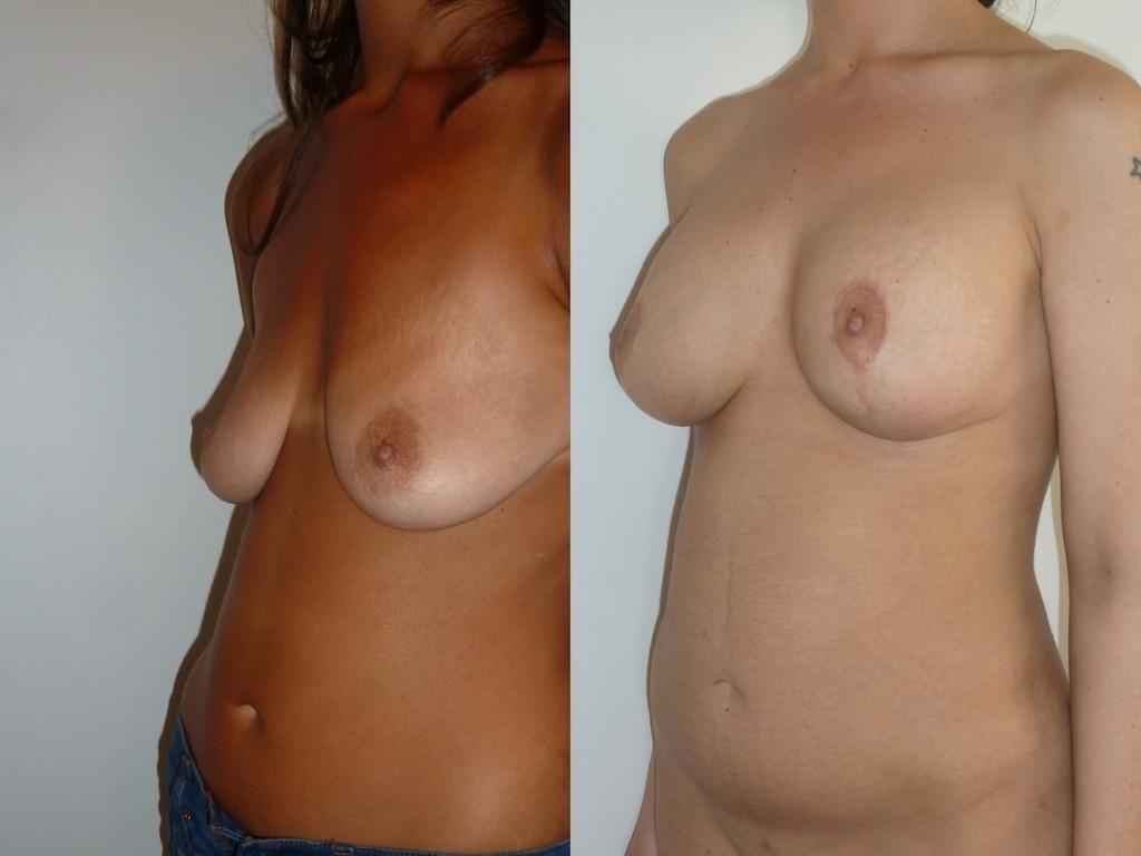 Лифтинг груди + имплантаты