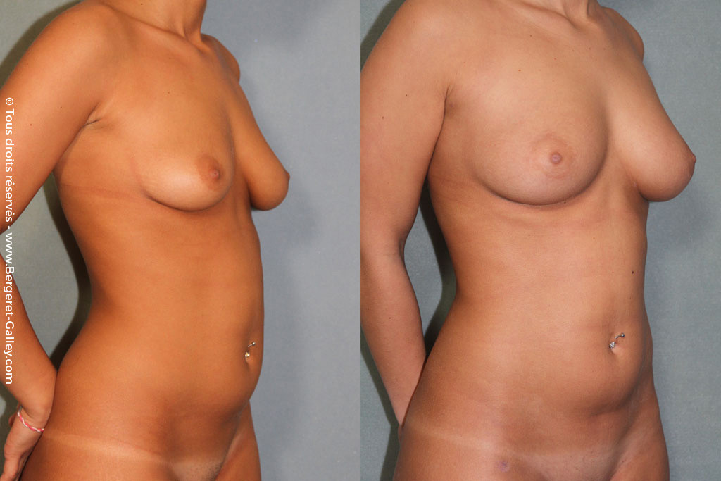 Lipofilling breasts