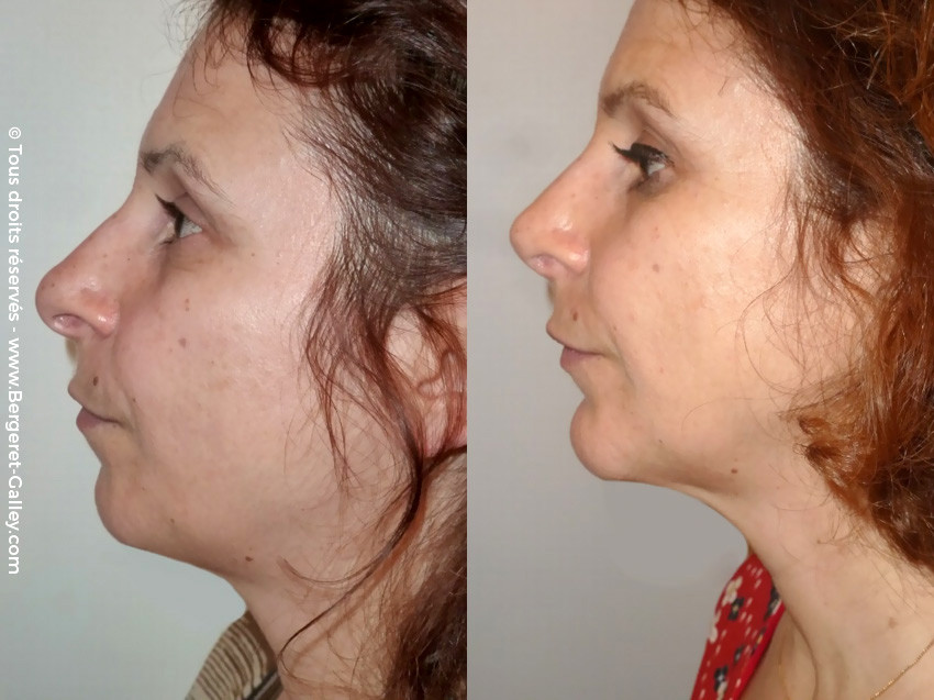 Before/After Rhinoplasty Paris