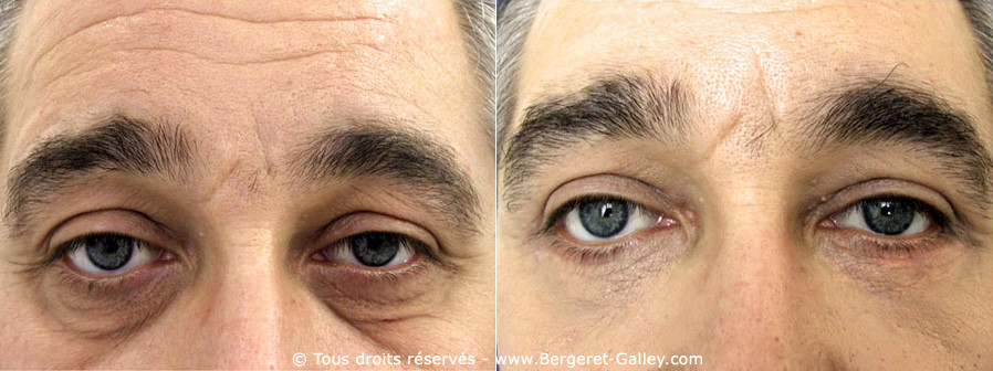 Eyelid aesthetic surgery with a man
