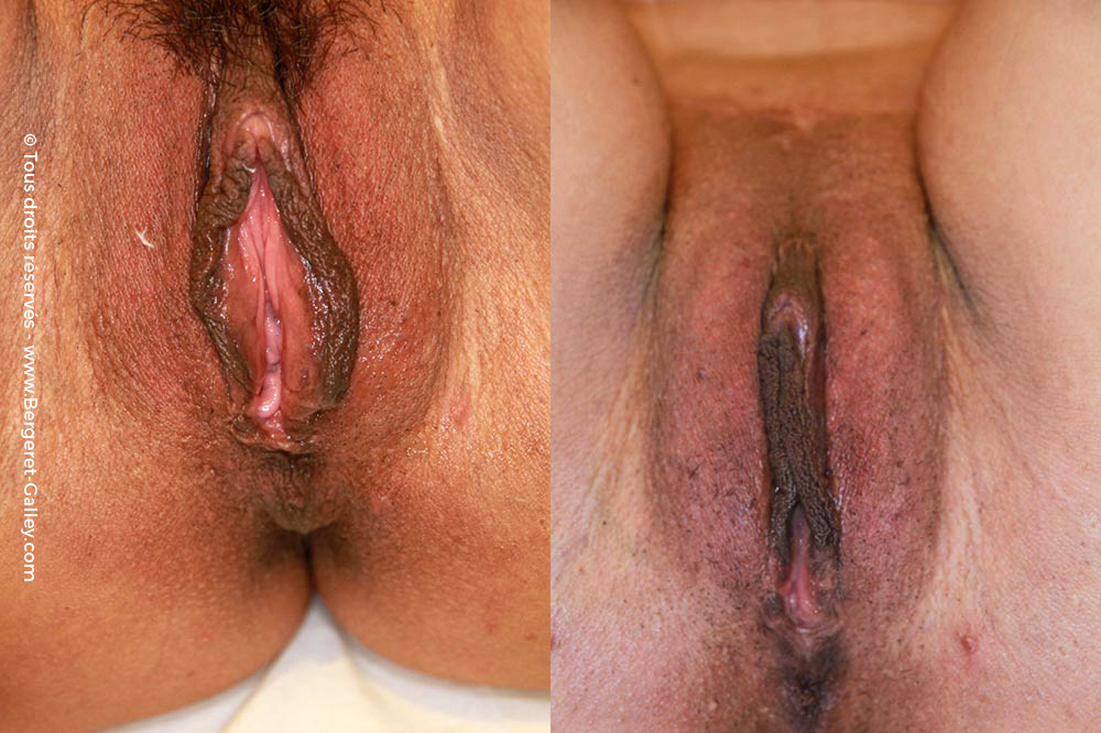 Genital aesthetic surgery