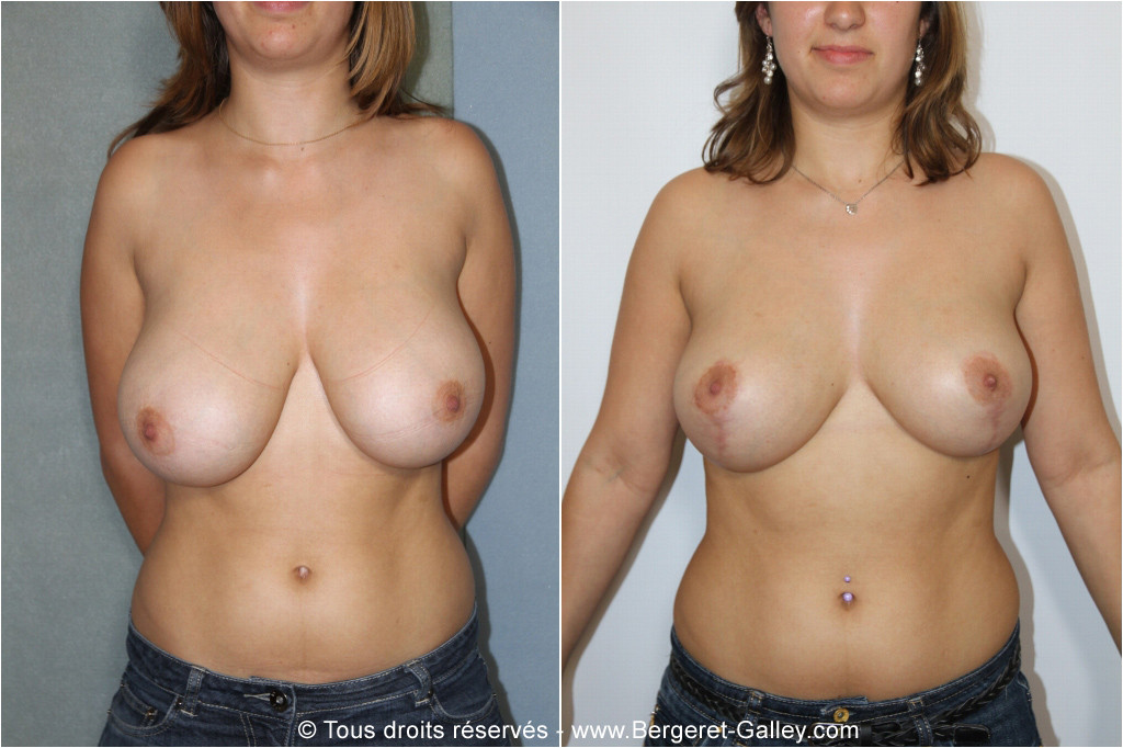 Breast reduction,mamma plasty