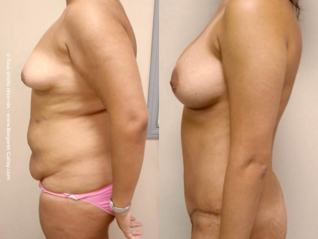 Plastie abdominale chez une femme après plusieurs grossesses de profil gros tablier abdominal