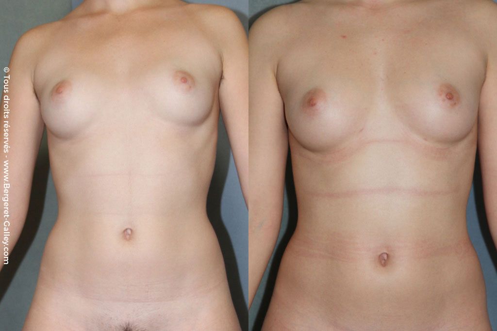 Mammary augmentation by Lipofilling