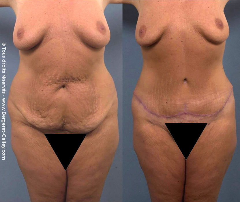 Tummy Tuck berfore/after