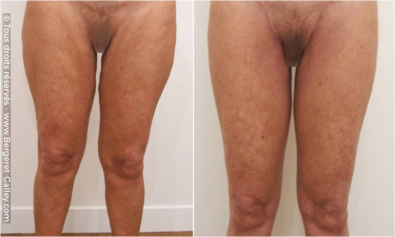 Before/After Thigh Lift
