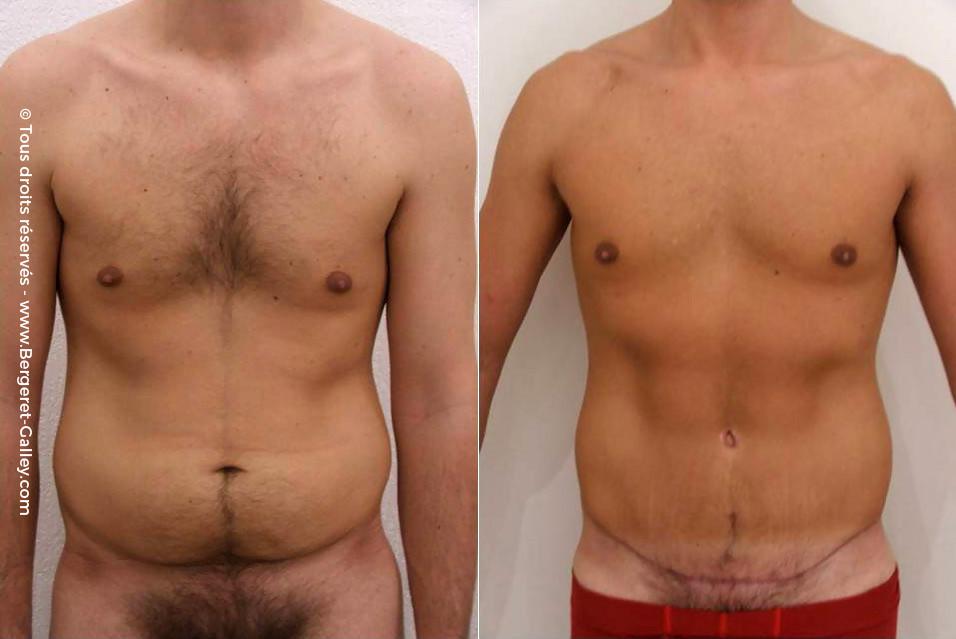 Plastie abdominale homme