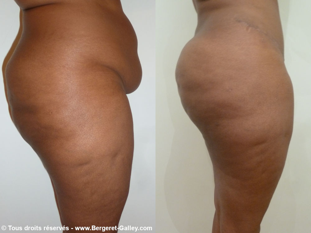 Buttocks augmentation with lipofilling