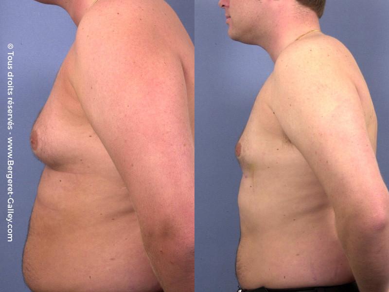 Liposuction of gynecomastia