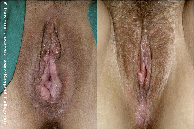 Vulvovaginal surgery