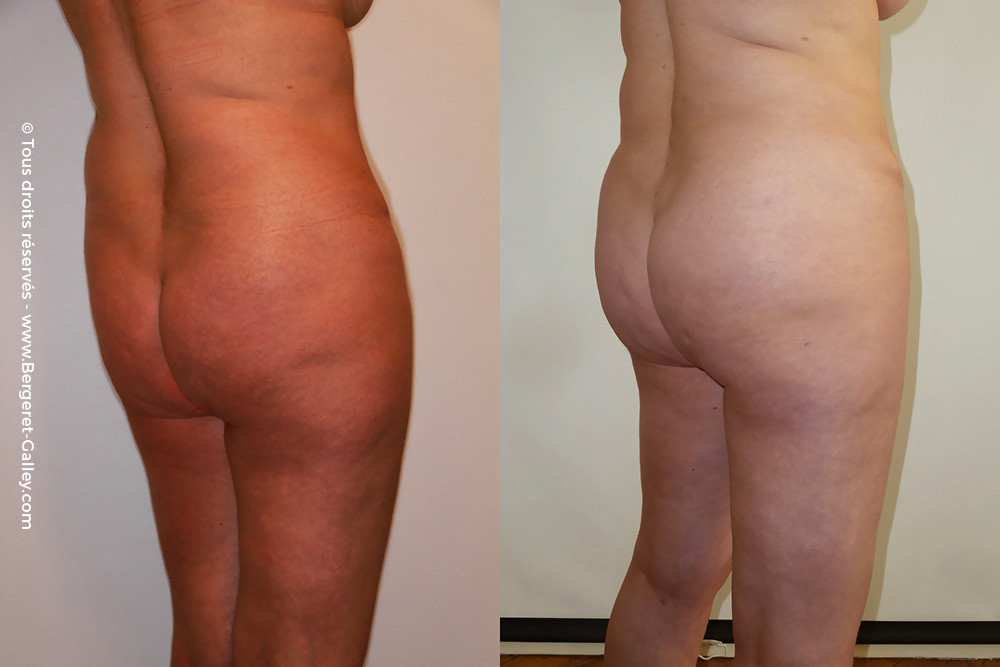 Abdominoplasty with Lipofilling of the buttocks  before/after