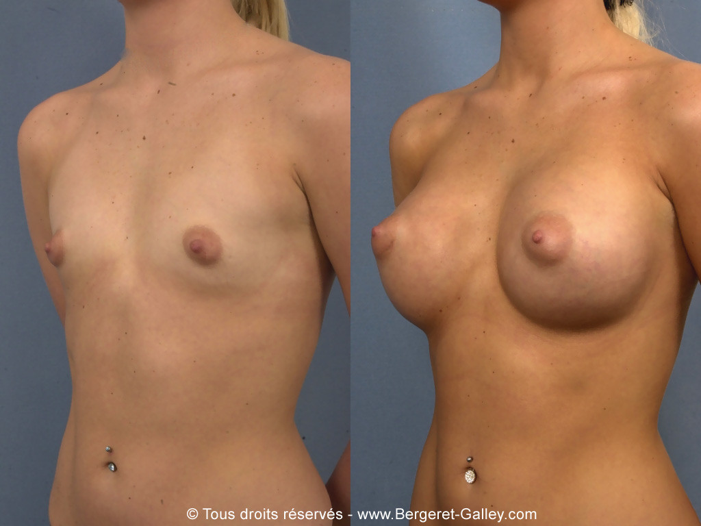 Breast augmentation with implants 320 ml