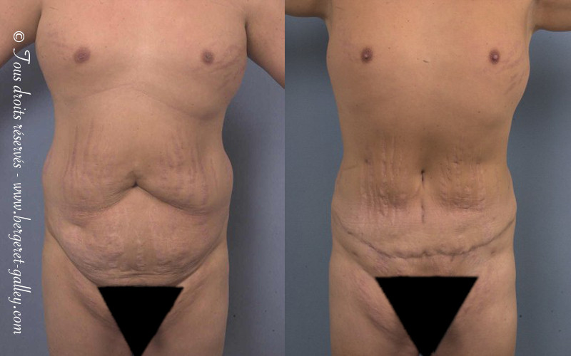 Before and after abdominoplasty on a man.