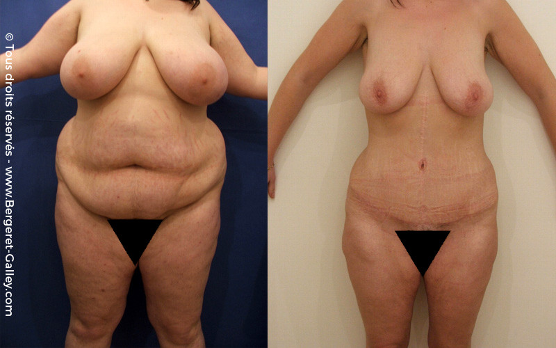 Abdominoplasty and liposuction on a young woman after multiple pregnancies