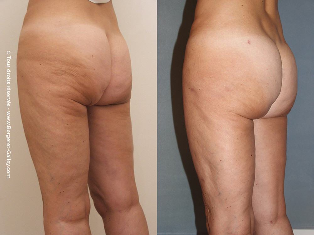 Buttock augmentation with buttocks Lipofilling instead of implants