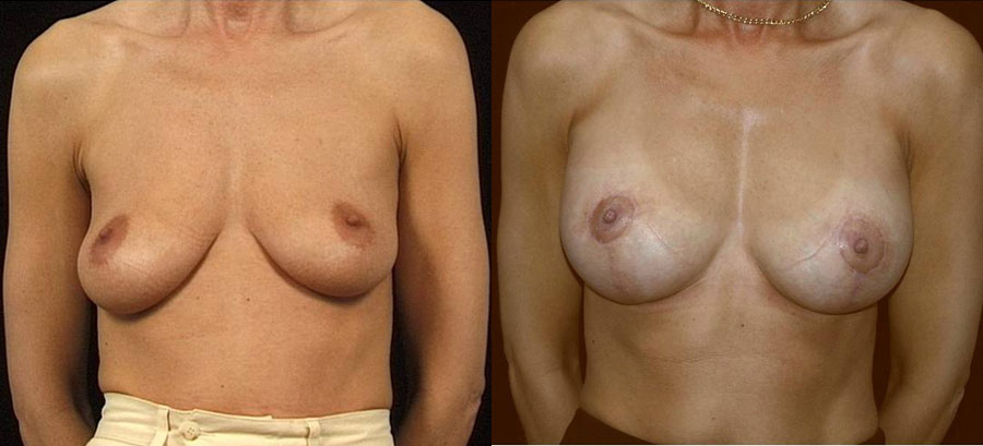 Breast augmentation with simultaneous lifting