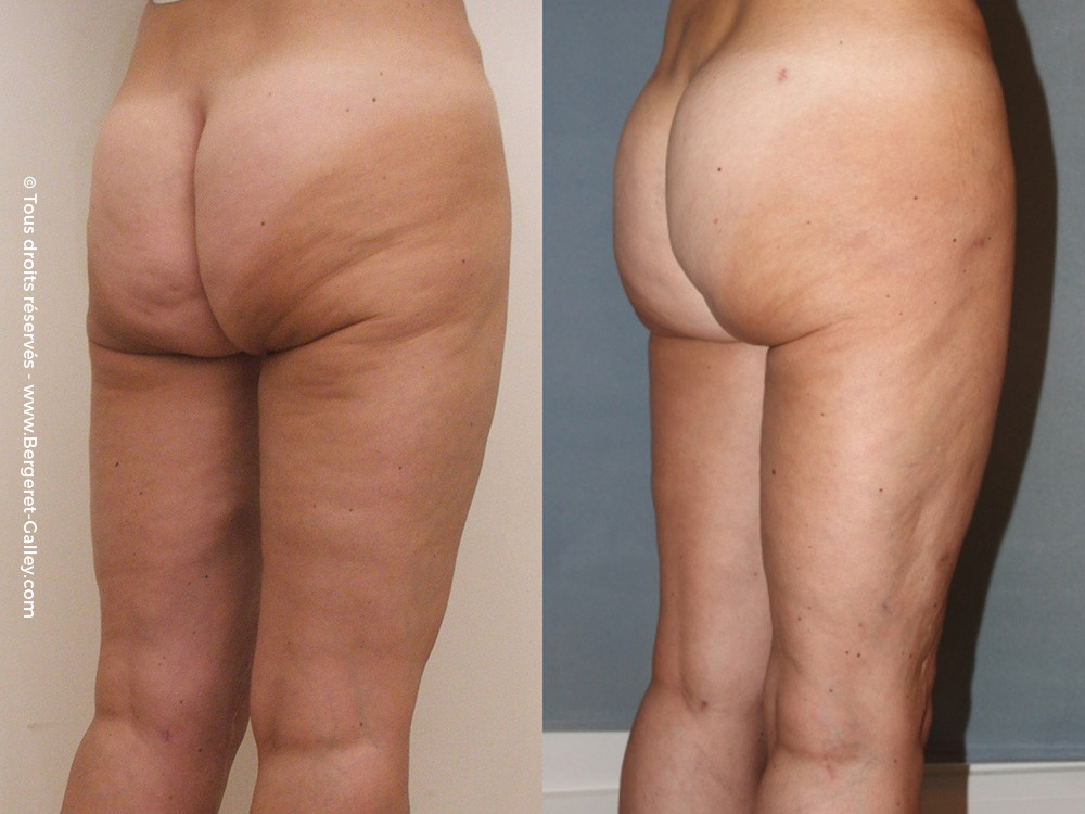 Before/After Buttocks augmentation