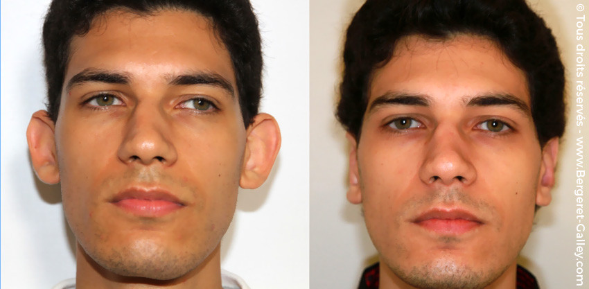 Otoplasty or Ears surgery