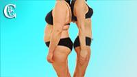 Visiter la galerie des photos avant/après des opérations esthétiques sur le corps