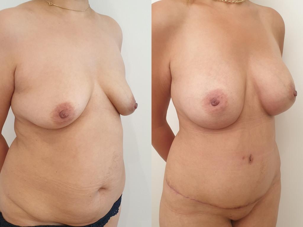 Augmentation mammaire avec des implants
