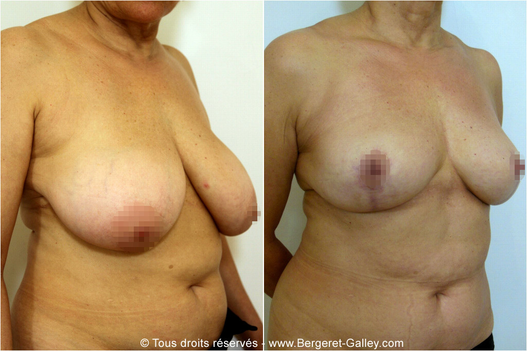 Breast reduction Paris