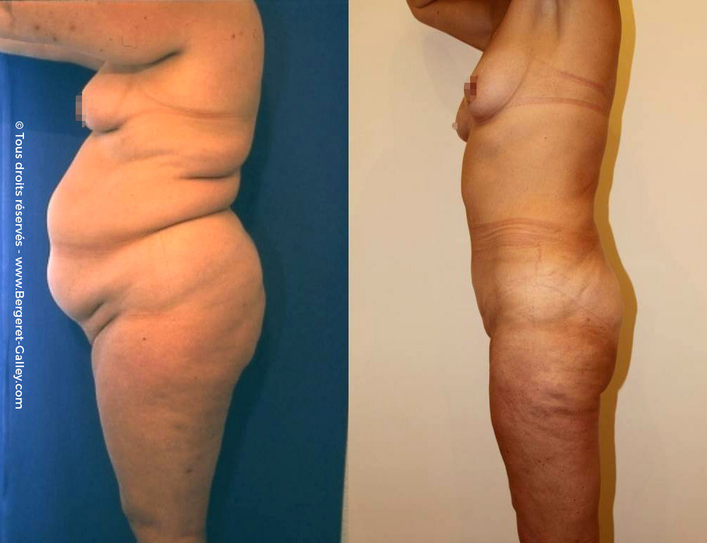 Before/After Bodylift