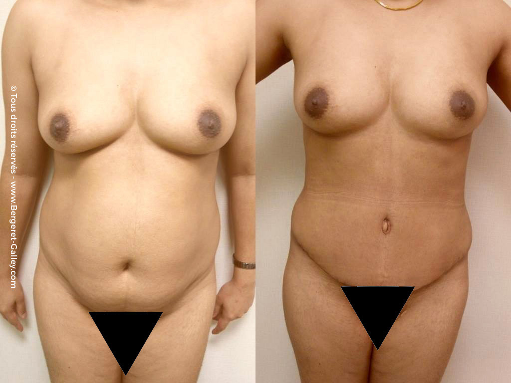 abdominal aesthetic surgery, before and after