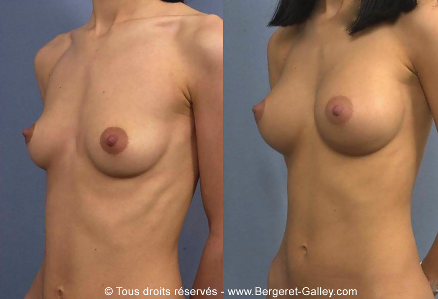 Photo before and after a transaxillary breast enlargement with implants of 310 mL