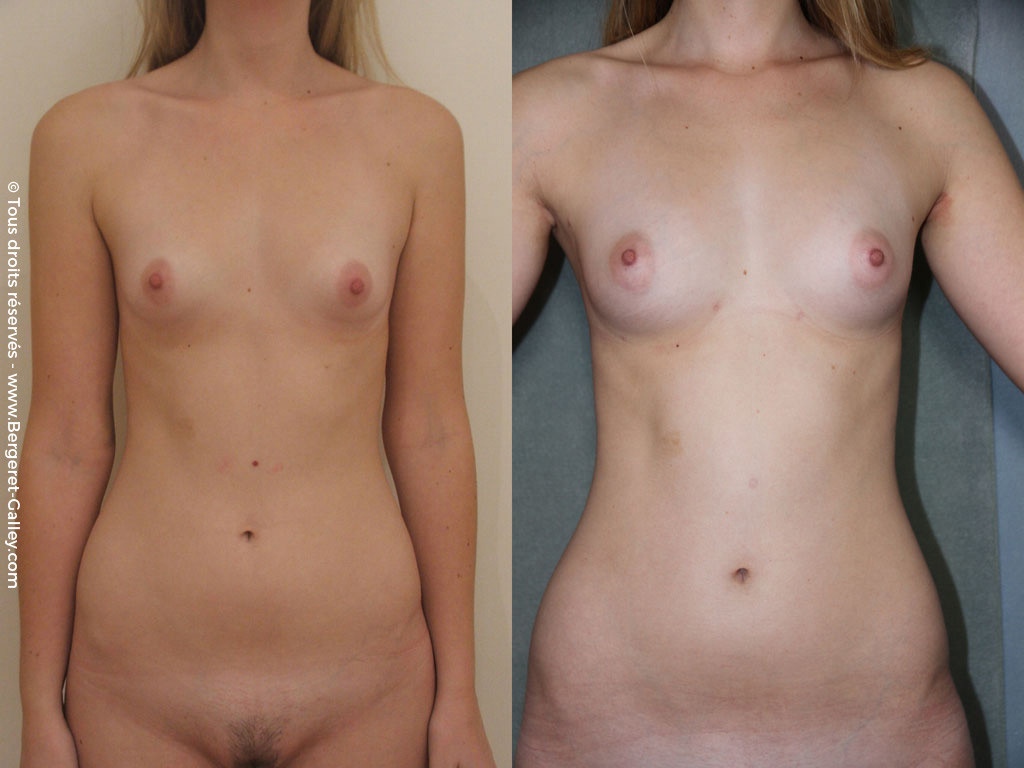 Breast augmentation by fat transfer