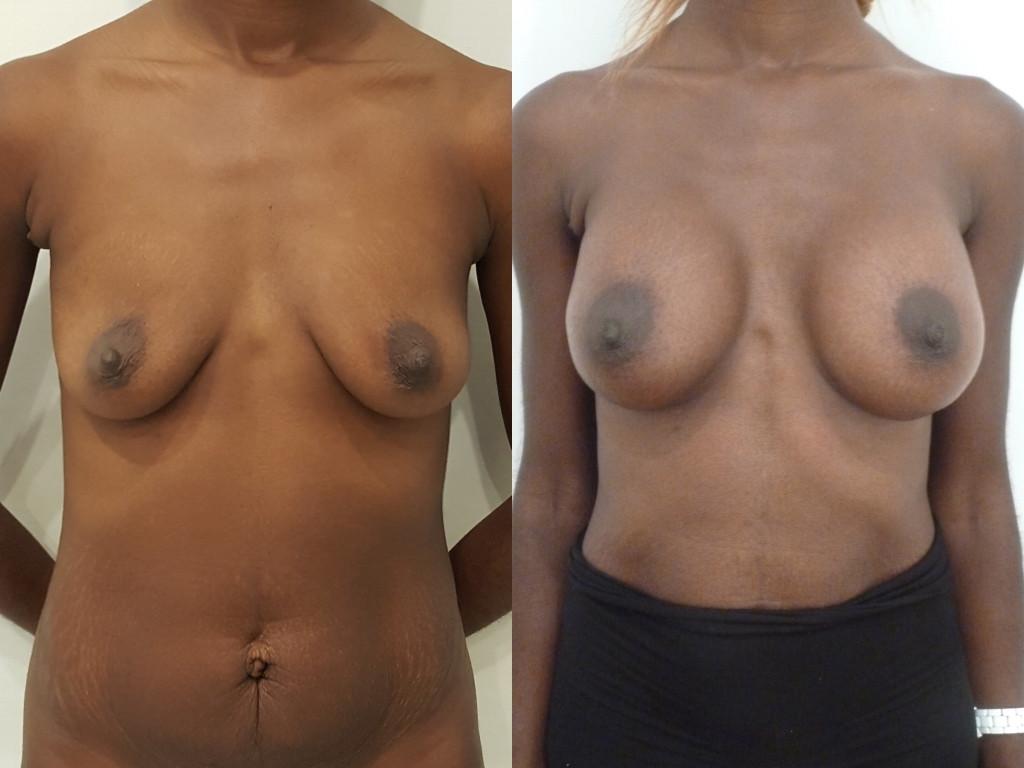 Avant/après chirurgie d'augmentation mammaire par prothèses