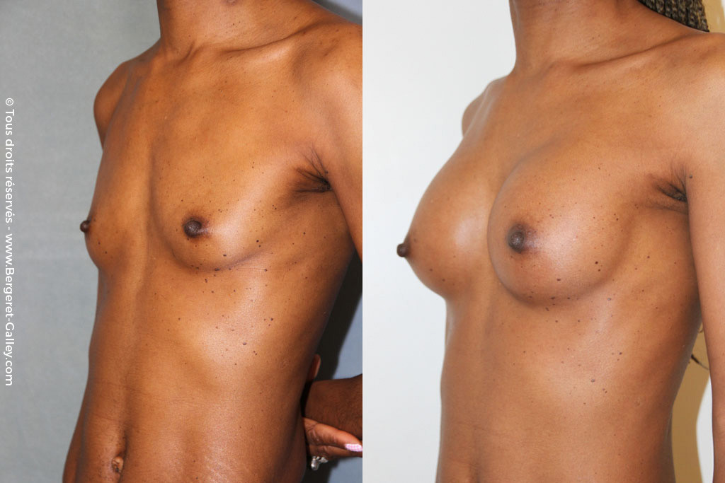 Lipofilling breast