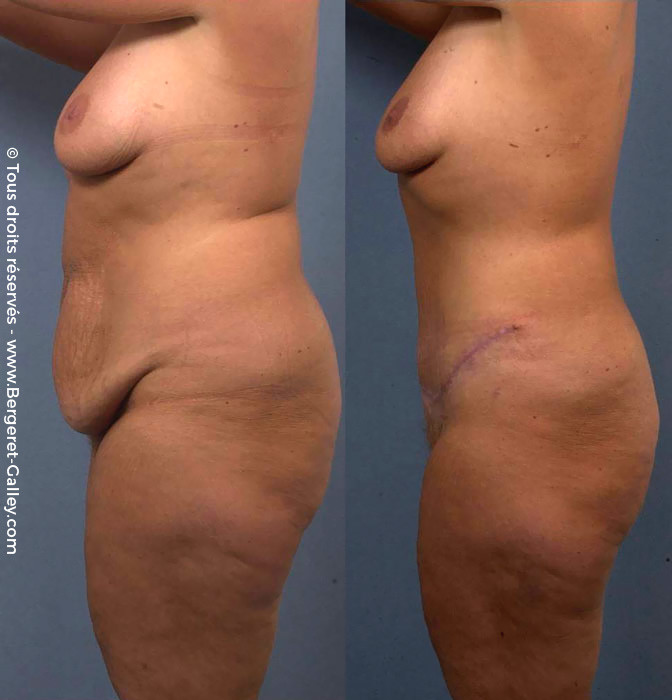 Abdominoplasty berfore/after