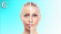 Visit the photo gallery before / after aesthetic operations on the face