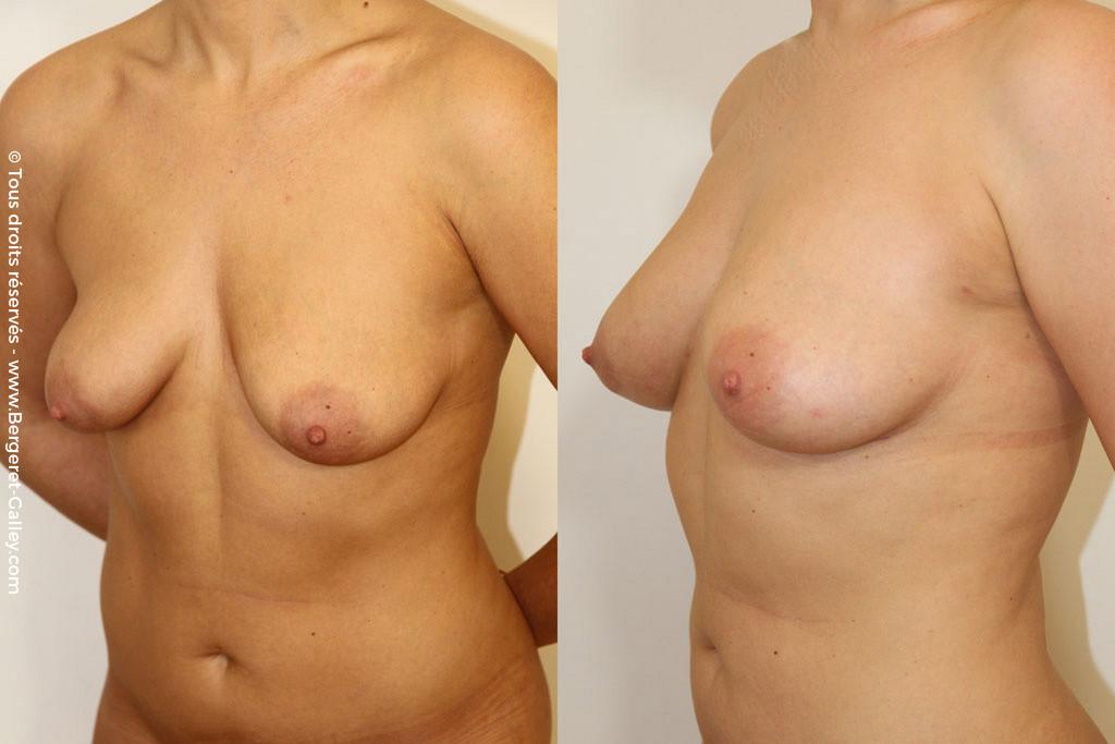 Увеличение груди с помощью липофилинга