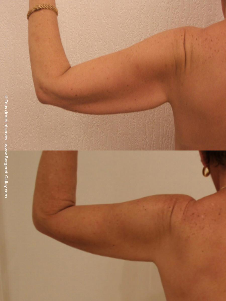 Résultat d'une brachioplastie bras gauche