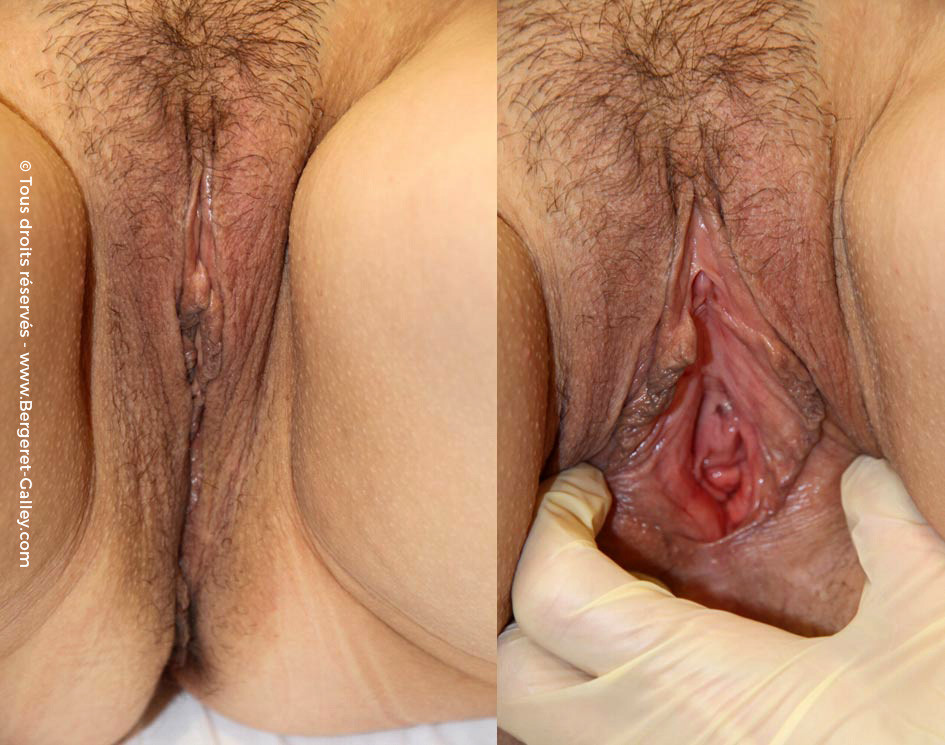 Female vulvovaginal rejuvenation